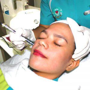 Mikrodermabrasi, Perawatan Wajah Non Invasif yang Aman & Nyaman