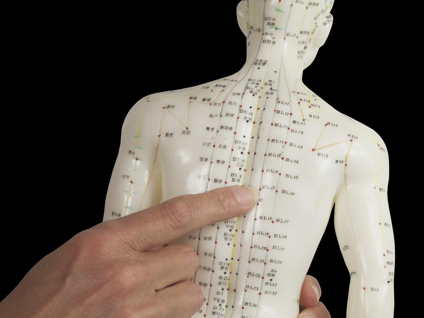 akupunktur mengobati radang sendi