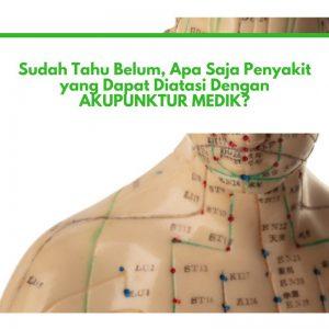 Serba-Serbi Akupunktur: Akupunktur Mengatasi 12 Penyakit Ini