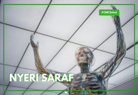 Nyeri Saraf: Ini Hal Yang Wajib Kamu Tahu