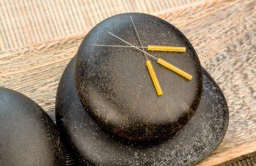 Akupunktur Pasca Stroke Pentingkah?